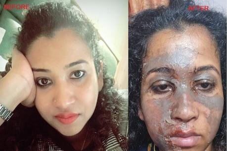 મહિલા ડોક્ટરને બ્યુટી પાર્લરમાં થયો કડવો અનુભવ, ફેશિયલ કરાવતી વખતે આખો ચહેરો બળી ગયો