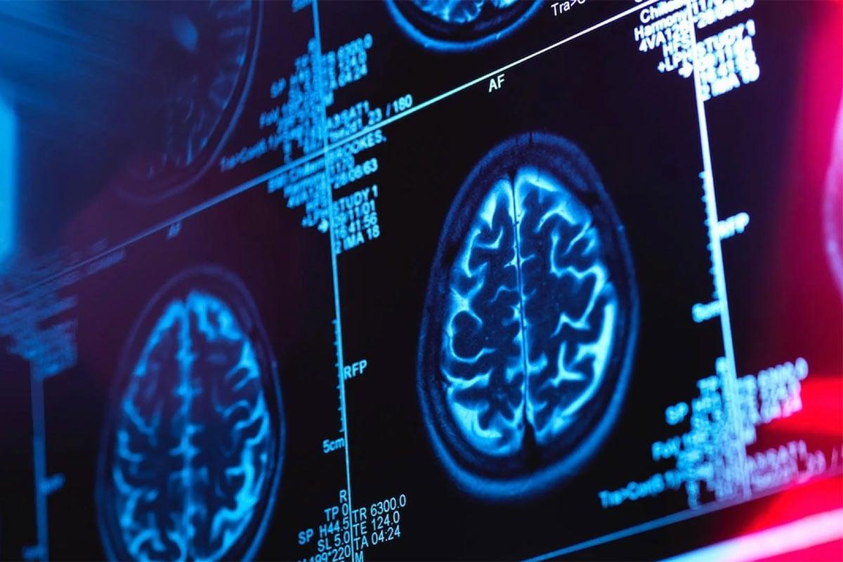 World Health Day 2021: યુવાનોમાં વધી રહ્યો છે Brain Strokeનો ખતરો, જાણો તેનું સૌથી મોટું કારણ