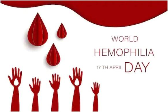 World Hemophilia Day 2021: જાણો કેમ ઉજવવામાં આવે છે વિશ્વ હીમોફીલિયા દિવસ?