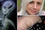 મહિલાનો દાવો- એલિયન્સ 50 વખત અપહરણ કરી ગયા, શરીર પર બનાવે છે ખાસ નિશાન