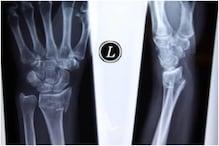 long covid: કોરોનાના દર્દીઓને વધુ સમય સુધી સ્ટીરોઈડ આપવાથી હાડકા નબળા પડે છે