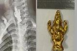 OMG! પૂજા બાદ ત્રણ વર્ષનો છોકરો ખાદ્ય વસ્તુ સમજી ગણેશજીની મૂર્તિ ગળી ગયો, ડોક્ટરો ચોંક્યા
