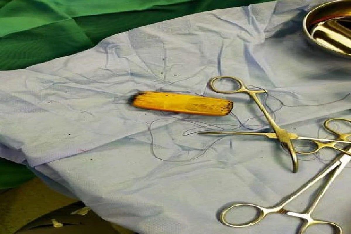 OMG: 6 મહિના સુધી પેટમાં દુખાવાથી પીડાતો હતો યુવાન, ડોક્ટરોએ સર્જરી કરી મોબાઈલ કાઢ્યો