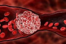 کوورونا مریضوں میں آرہی ہے Blood Clotting کی دقت، سائنسدانوں نے دنیا بھر کو کیا الرٹ