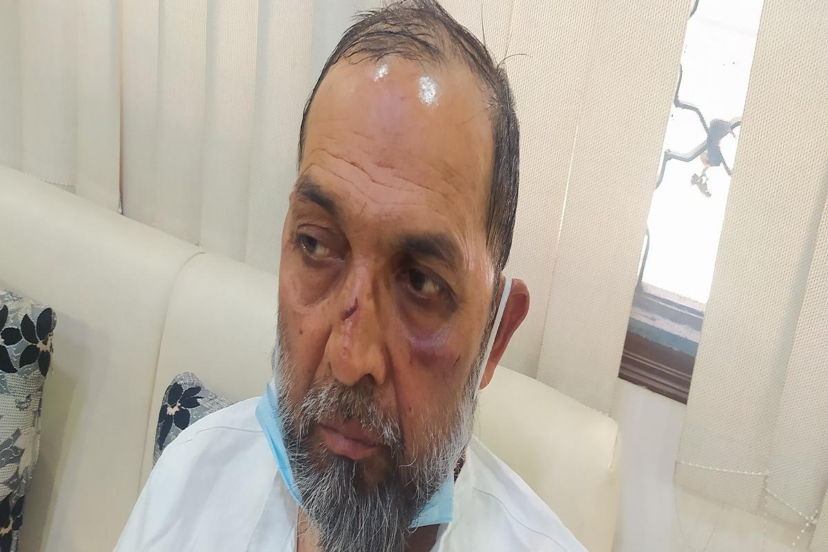 کاظم علی نے نیوز 18 کو بتایا کہ جب انہیں شک ہوا تو انہوں نے گاڑی سے نیچے اترنے کی کوشش کی، لیکن گاڑی کا دروازہ بند کر دیا گیا اور ان کے ساتھ مارپیٹ شروع کر دی گئی۔