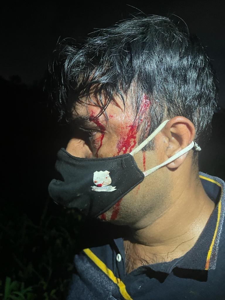 این سی بی کے چار افسران زخمی ہوئے اور ایک کو اسپتال میں داخل کرایا گیا۔زخمی ہونے والے افسران میں شری کانت راؤت، پرمود موڑ، انمول مورے، سمیر سالیکر اور کرن راولکر شامل ہیں۔