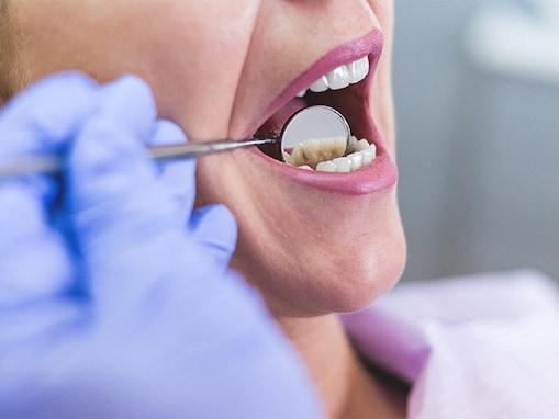 வாய் புற்றுநோய் | Oral Cancer